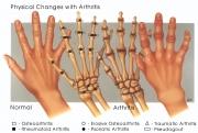 arthritisps