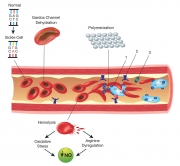 sickle-cell-diagram